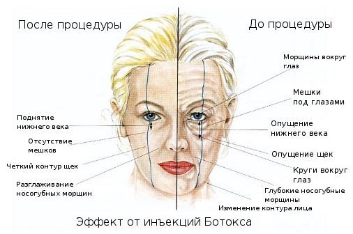 Эффект от ботокса