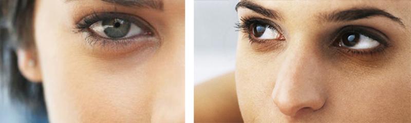 Пигментация кожи под глазами