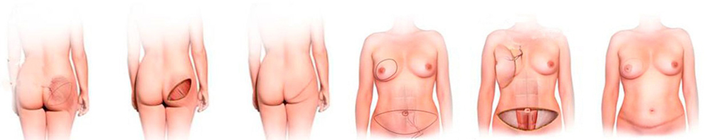 Реконструкция груди имплантами