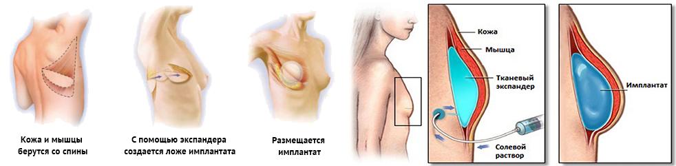 Создание формы груди