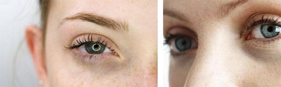 Тонкая кожа под глазами