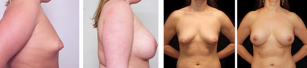 Исправление формы груди