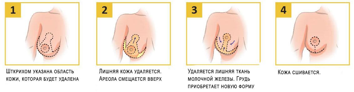 Якорный метод подтяжки груди