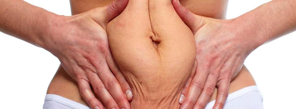 Показания к миниабдоминопластике
