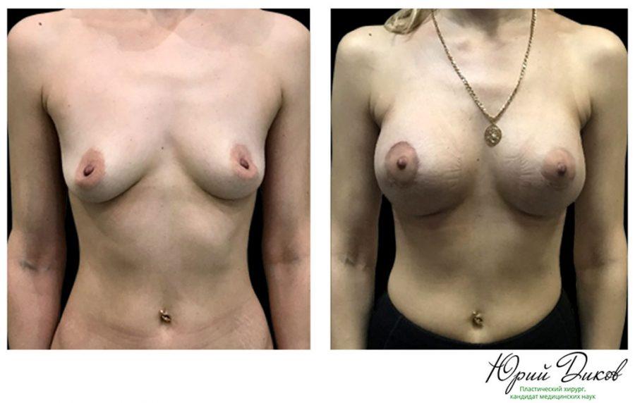 шрамы после увеличения грудины за 3 дня