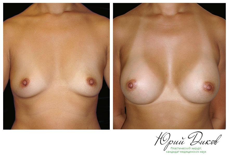 Увеличение анатомическими имплантами 250 сс установка под грудную мышцу, разрез в складке под грудью