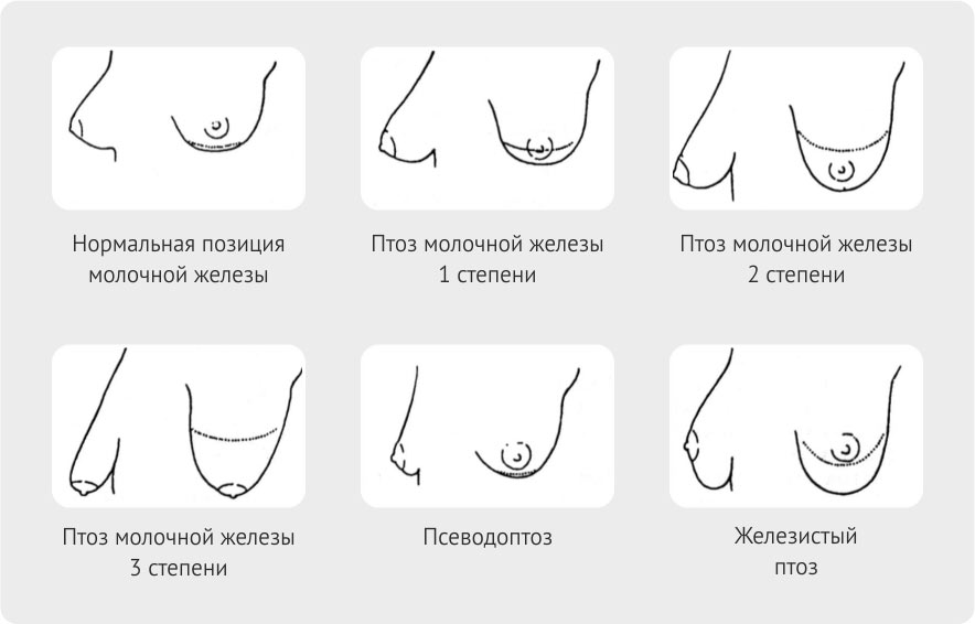 Tit classification