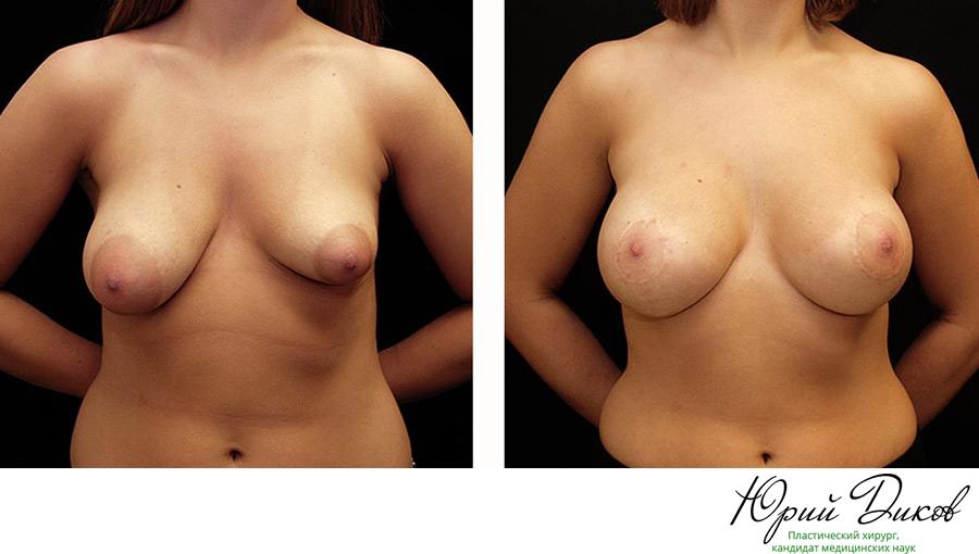 Какими упражнениями быстро увеличить грудь