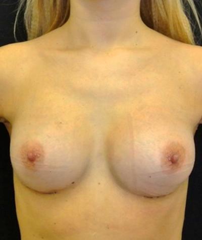 After-Увеличение груди