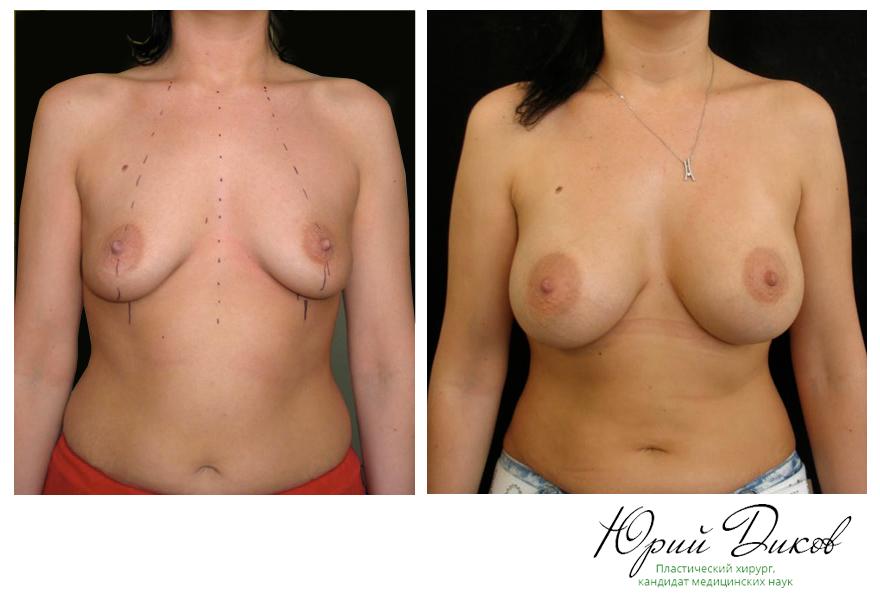 Увеличение анатомическими имплантами 350 сс, установка под грудную мышцу, разрез в складке под грудью