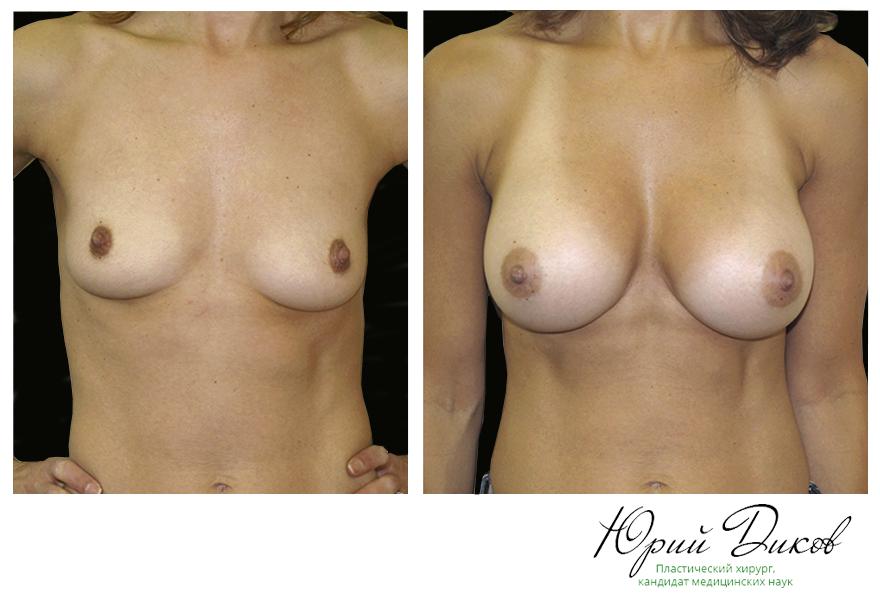 Увеличение анатомическими имплантами 310 сс,установка под грудную мышцу, разрез в складке под грудью
