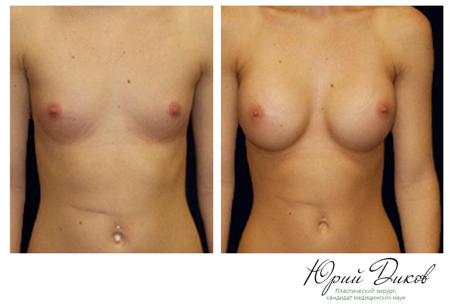 Увеличение круглыми имплантами 290 сс,установка под грудную мышцу, разрез в складке под грудью