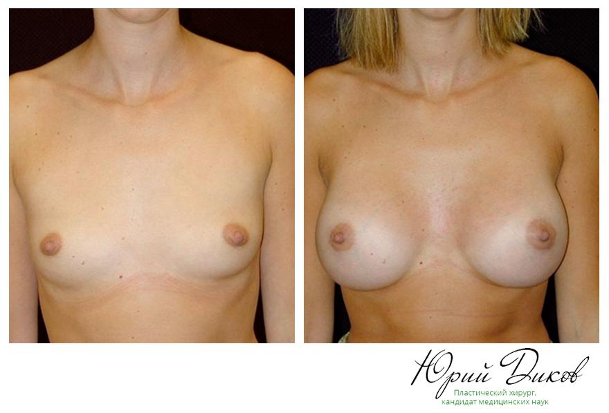 Увеличение анатомическими имплантами 330 сс, установка под грудную мышцу, разрез в складке под грудью