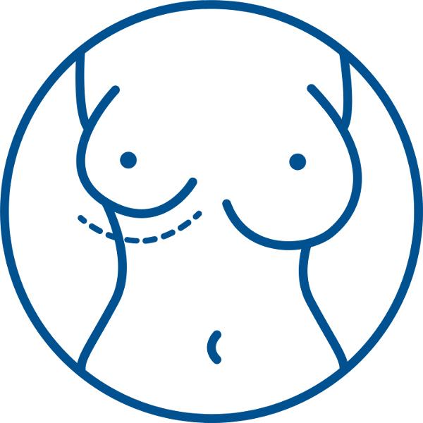 Пластика асимметрии груди