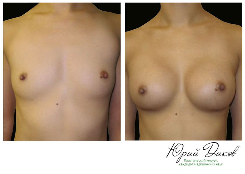 Увеличение круглыми имплантами 225 сс,установка под грудную мышцу, разрез в складке под грудью