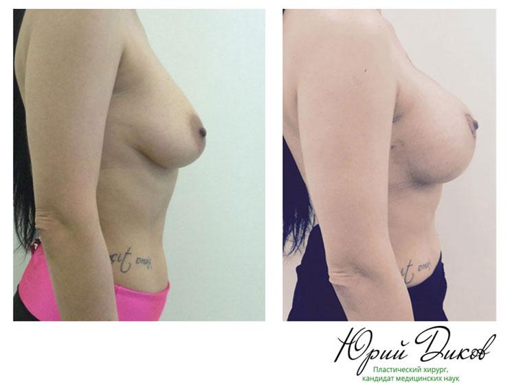 Увеличение груди круглыми имплантами 390 сс с периареолярной подтяжкой кожи. Разрез вокруг ареолы