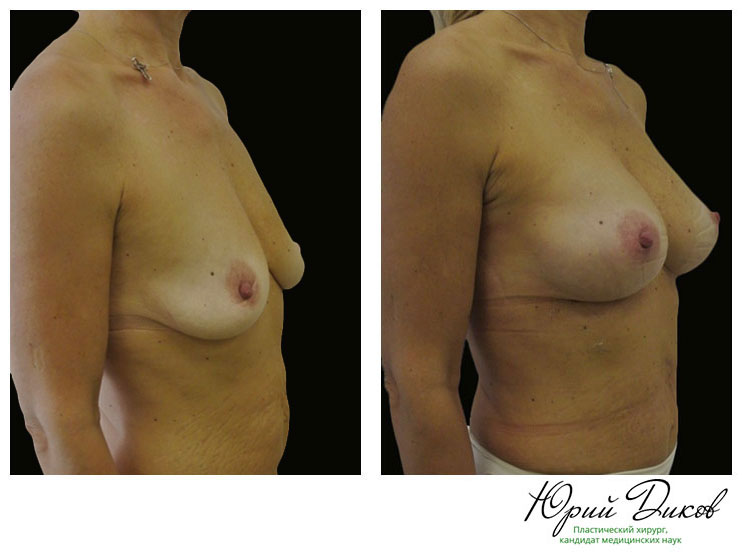 Увеличение анатомическими имплантами Allergan высокая проекция 290 сс, установка под грудную мышцу, разрез в складке под грудью