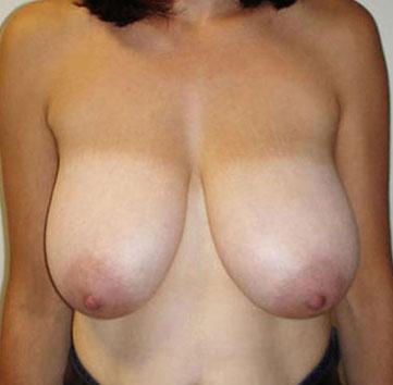 Before-Уменьшение груди