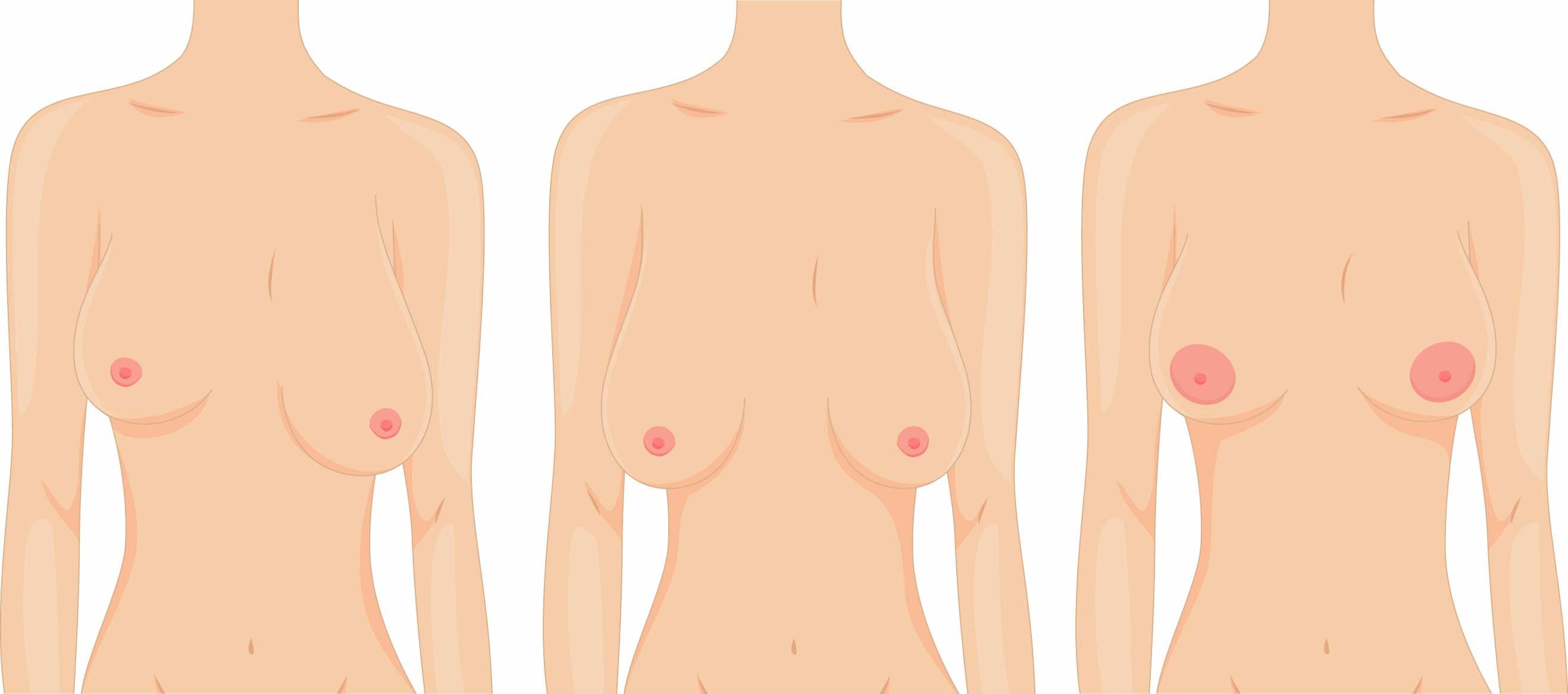 Маммопластика после кормления грудью