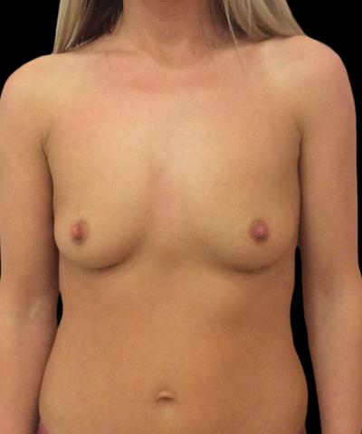 Before-Увеличение груди
