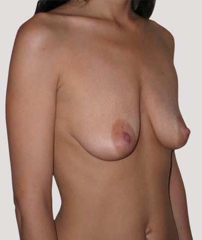 Before-Подтяжка груди