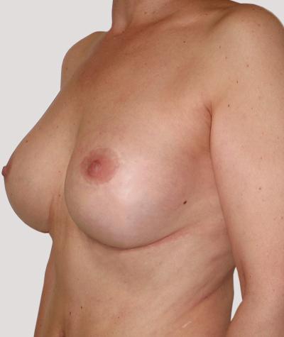 After-Подтяжка груди